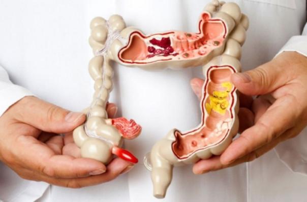 5 ախտանշան, որոնք կարող են վկայել հաստ աղիքի քաղցկեղի մասին