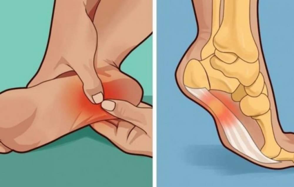 Արեք ՍԱ ամեն առավոտ և ողջ օրվա ընթացքում ոտքերի ցավ չեք ունենա